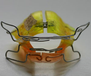 Aparaty ortodontyczne zdejmowane