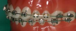 Aparaty ortodontyczne stałe