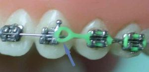 Zerwany wyciąg elastyczny, przesuwający zęby
